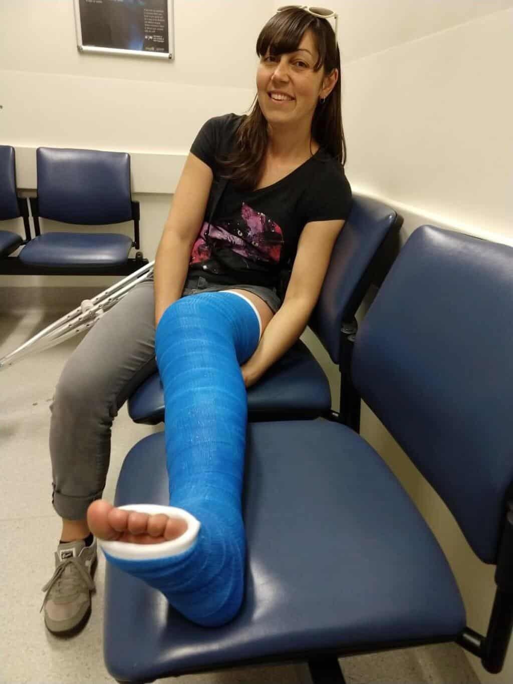Milly in leg cast