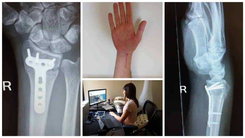 Collage of Amellia Formby with a broken wrist and two wrist x-rays
