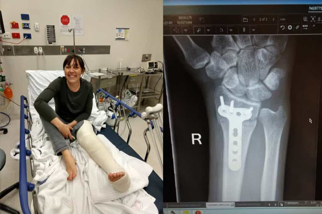 Amellia Formby in the hospital with her left leg in plaster and an x-ray of her broken wrist
